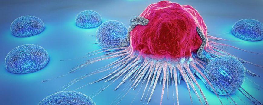 Si të dallojmë shenjat e hershme që paralajmërojnë prezencën e Kancerit në organizëm